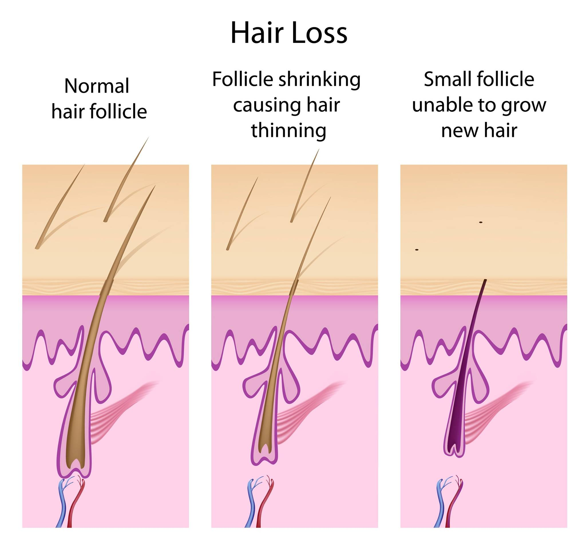 Androgenetic Alopecia In Women - Crown Worthy