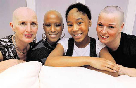 Alopecia Areata in woman of all colors
