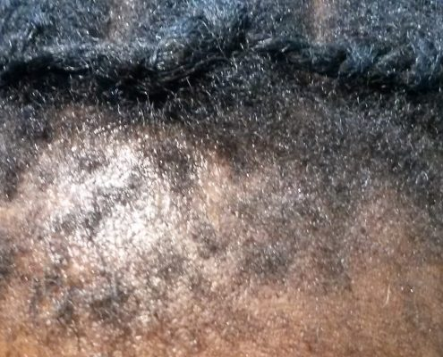 hair line thinning